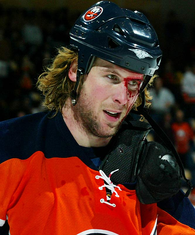 The Islanders backliner looked a little worse for wear after swapping knuckle sandwiches with Jim Slater of the Atlanta Thrashers in a December 2006 game.