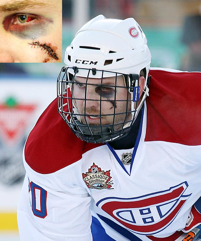 Too late the cage for the Montreal Canadiens defenseman, who was hit in the face by a shot in a February 2011 game.