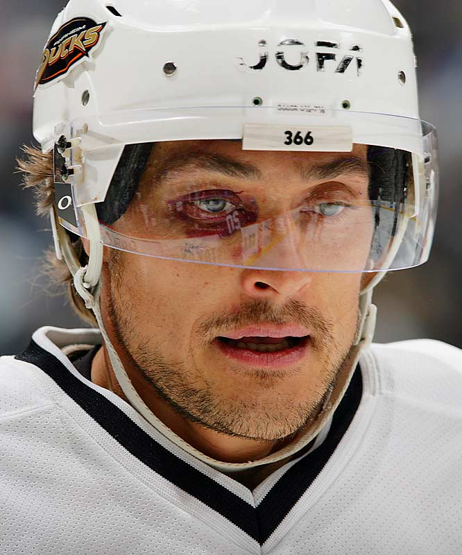 A playoff beard can lend a touch of toughness and ferocity to the wearer's mug, although in the case of a fair-haired Finn such as Teemu Selanne, a good shiner may be necessary to achieve the desired effect.