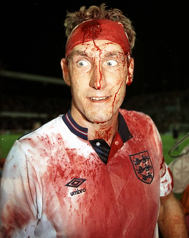 Despite a gash in his head that required stitches mid-match, Butcher insisted on returning to a pivotal match against Sweden during qualifying for Italia 90. The cut opened again as he continued to head the ball, leaving his face and uniform in a bloody mess.