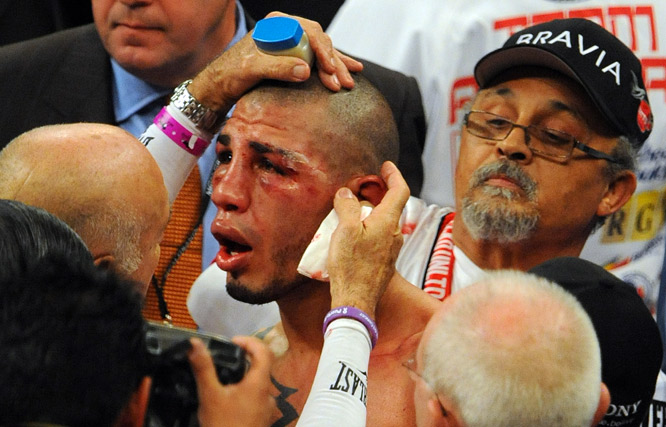 As the fight progressed, Cotto's face served as proof of the beating he was receiving.