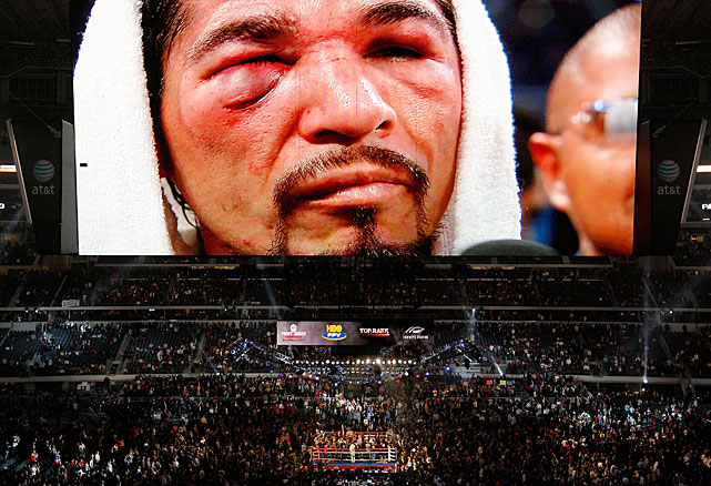 "A crowd of 41,734 watched Margarito receive the beating of a lifetime. ""We were going good until I got cut and that's when the problems started coming,"" he said through a translator afterward."