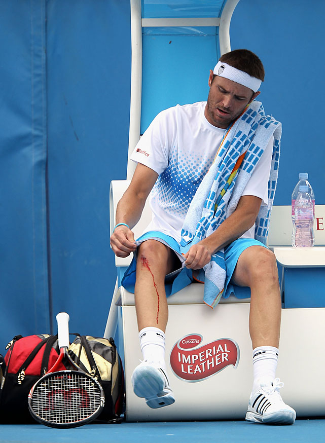 American Mardy Fish attends to his bleeding knee during his second-round match against Tommy Robredo of Spain. The 16th-seeded Fish lost 1-6, 6-3, 6-3, 6-3.