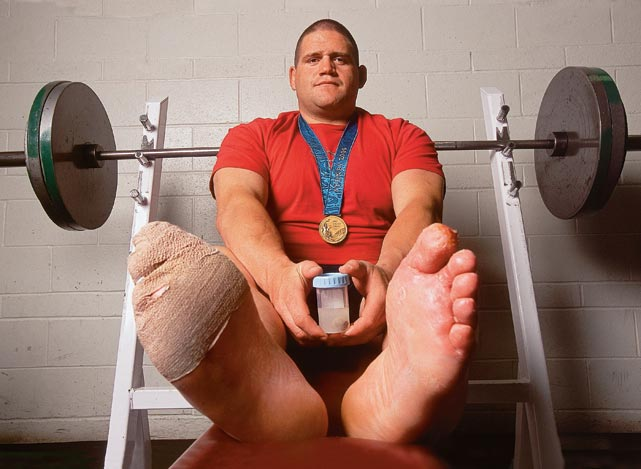 Gardner poses on a weight bench with a jar containing his amputated toe.  Gardner sustained frostbite after a Feb. 14, 2002 snowmobile mishap, and the resulting treatment cost him his toe.