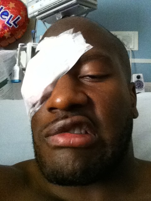 "Ouch. James Harrison tweeted this photo after eye surgery to repair a right orbital bone structure he suffered during an October 2011 game against the Texans. The injury didn't affect his sense of humor. Said the Steelers linebacker: ""I feel like a pirate. Lmao."""