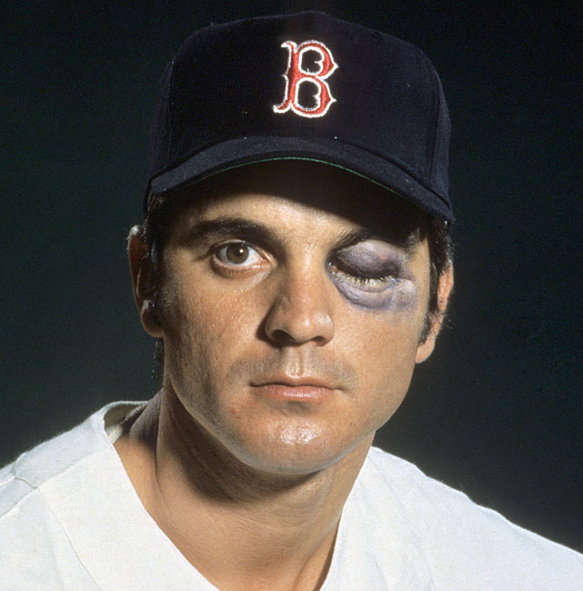 Though 1967 was a highly successful year for the Red Sox, there was one incident that most Bostonians would rather forget. In August during a game against the Angels, 22-year-old Tony Conigliaro was hit by a pitch on his left cheekbone and was carried off the field on a stretcher. Though Conigliaro would return to action, the image of his black eye remains a bad memory for Red Sox Nation and other baseball fans.