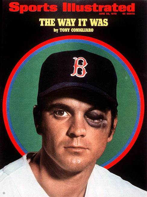 Tony Conigliaro's left cheekbone is shattered by fastball thrown by Angels' hurler Jack Hamilton. The 22-year old Red Sox slugger will miss the rest of 1967 and all next year, and will never come close to the Hall of Fame potential displayed during his first three seasons.