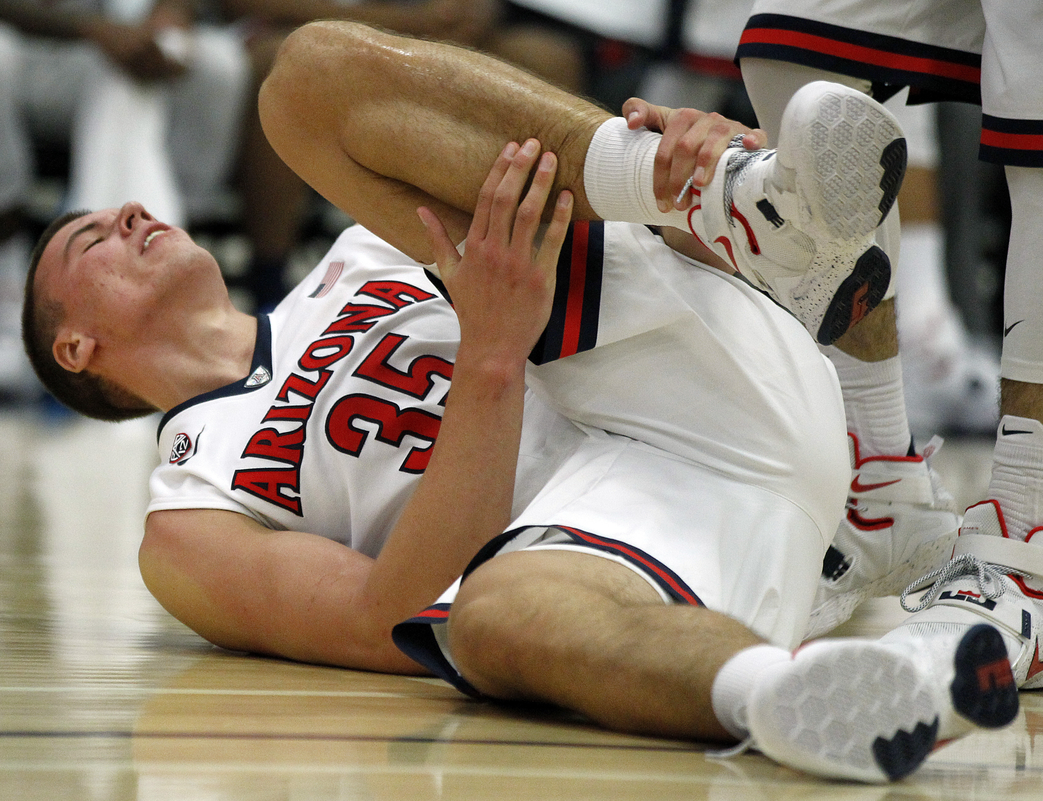 Arizona center Kaleb Tarczewski (35) reacts after an injury during the second half of an NCAA college basketball game against Santa Clara in the quarterfinals of the Wooden Legacy tournament in Fullerton, Calif., Thursday, Nov. 26, 2015. Arizona won 75-73