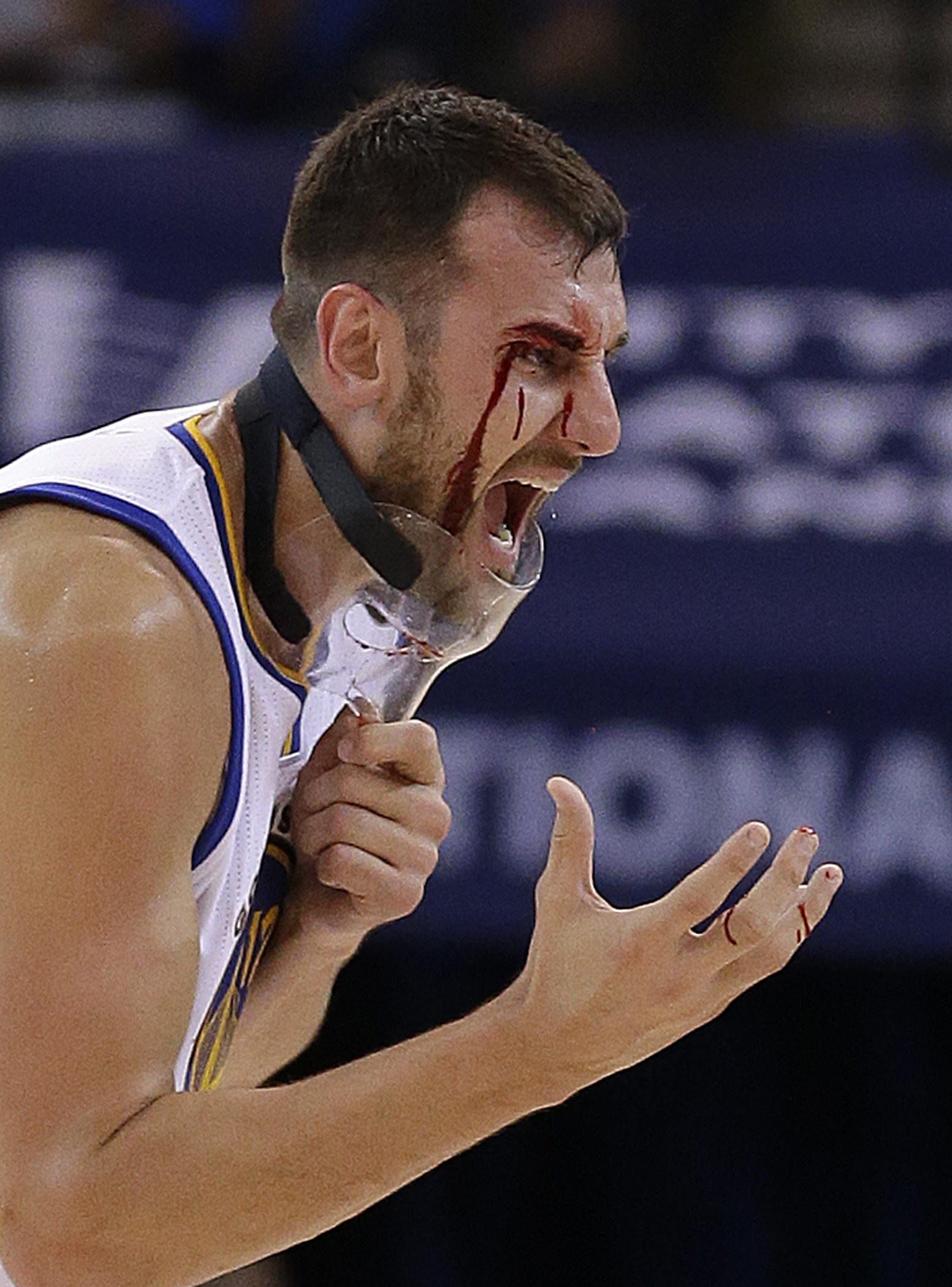 Golden State Warriors' Andrew Bogut removes his protective mask after receiving a laceration near his eye during the second half of an NBA basketball game against the New Orleans Pelicans on Tuesday, Oct. 27, 2015, in Oakland, Calif. Bogut required stitch