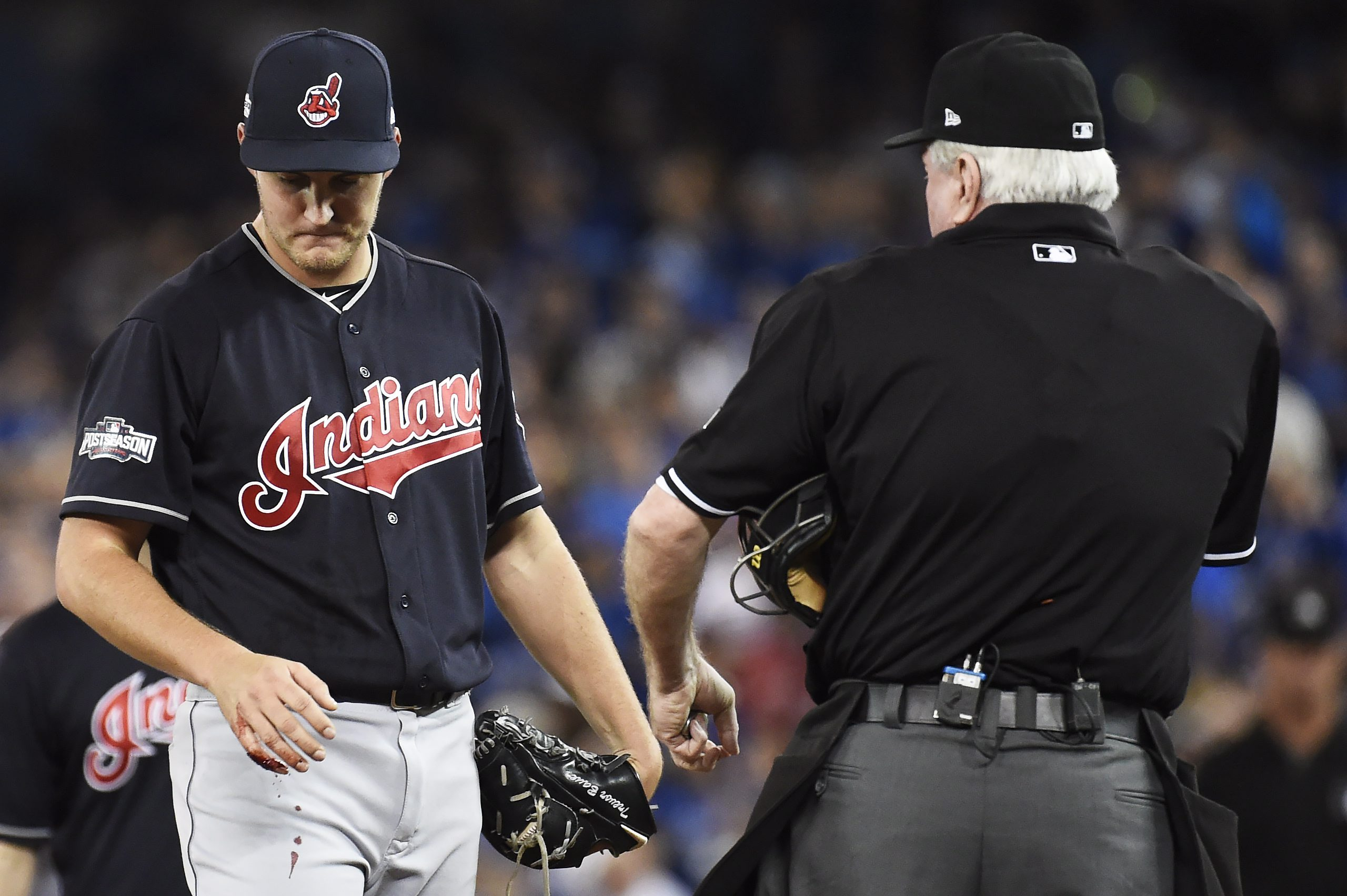 Cleveland Indians starting pitcher Trevor Bauer looks at his bleeding finger during first inning of game three American League Championship Series baseball action against the Toronto Blue Jays in Toronto on Monday, Oct. 17, 2016. (Nathan Denette/The Canad