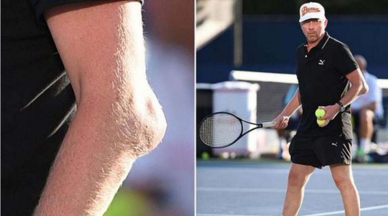 Former U S Open Winner Boris Becker Has An Extreme Case