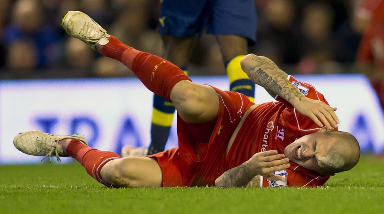 liverpool martin skrtel head staples photo