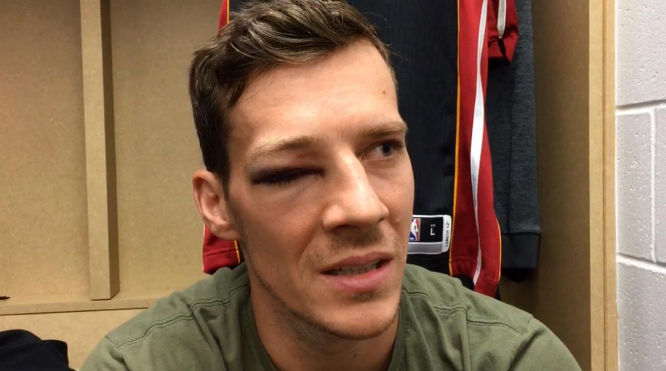 Nemacka - sve sto zelite da znate a ne smete da pitate Filipenka Goran-dragic-eye-injury-black