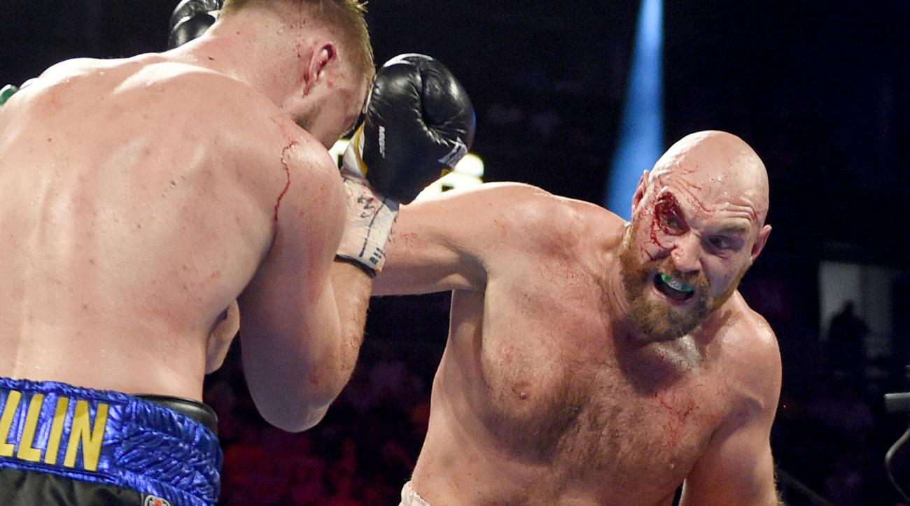Tyson Fury Overcomes Gruesome Cut Over His Right Eye to Unanimously Beat Otto Wallin