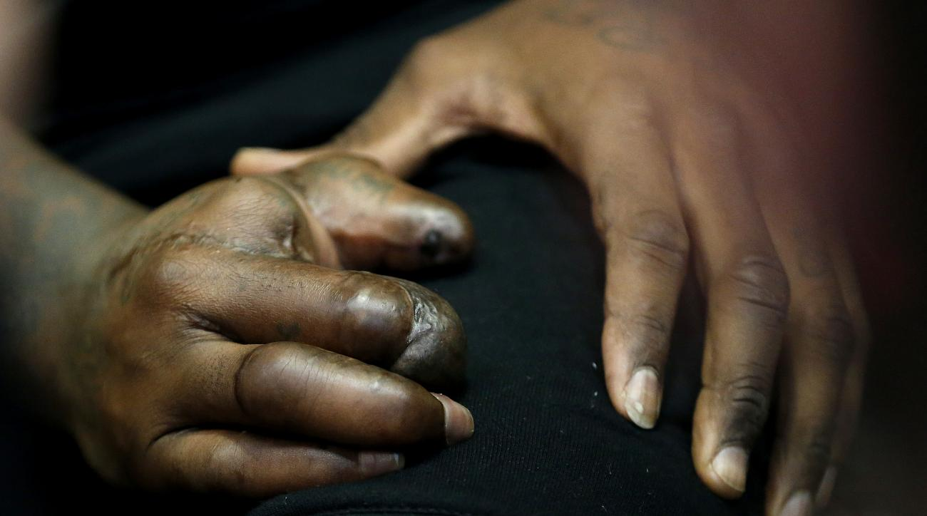The hand of New York Giants defensive end Jason Pierre-Paul is seen as he speaks to reporters for the first time since injuring his right hand,  during NFL football practice, Friday, Oct. 30, 2015, in East Rutherford, N.J. Pierre-Paul hurt his hand while