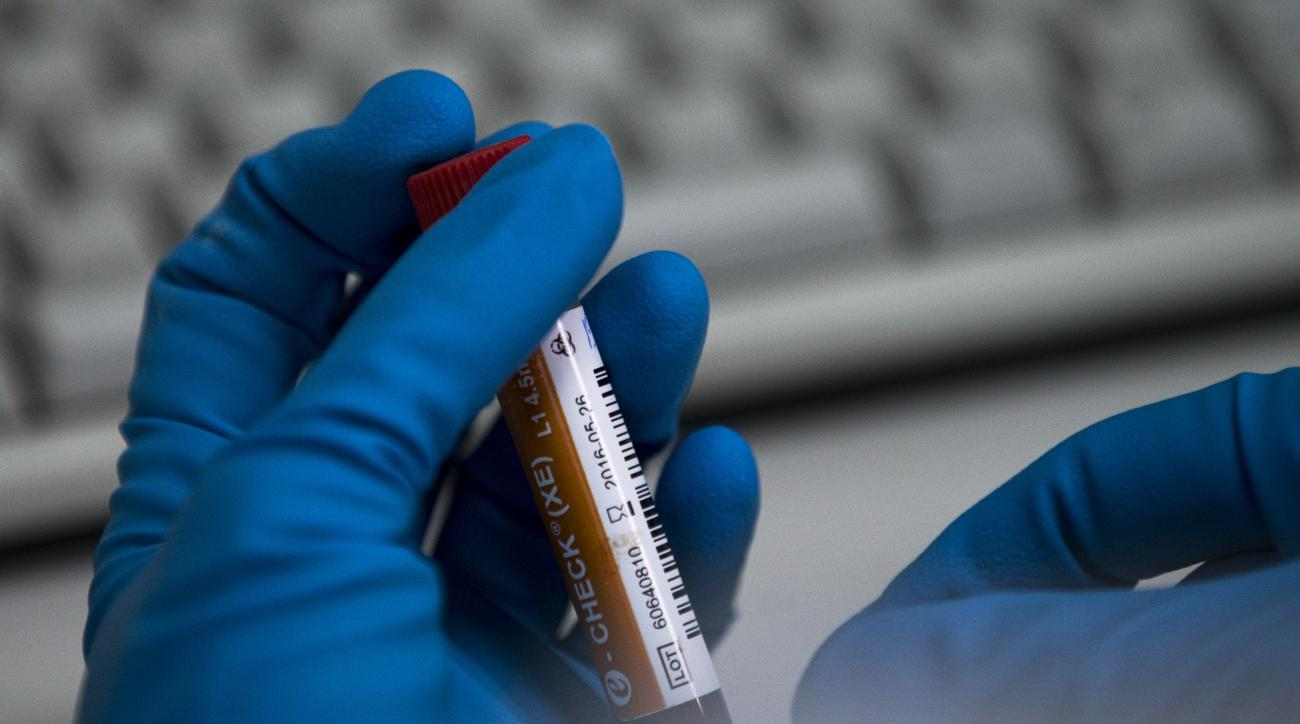An employee of the Russia's national drug-testing laboratory holds a vial in Moscow, Russia, Tuesday, May 24, 2016. The Russians have been accused of state-sponsored doping at the 2014 Sochi Olympics, and the IOC has asked WADA to carry out a full-fledged