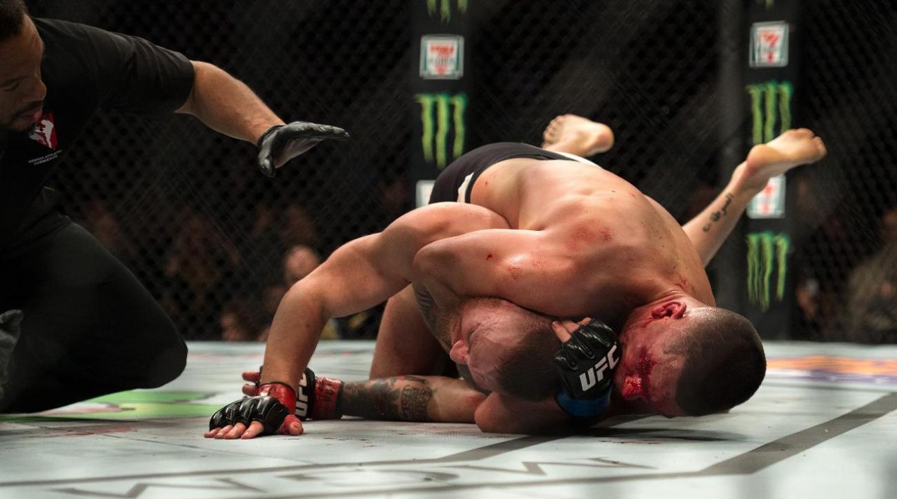 Conor McGregor calls out Aldo, Dos Anjos after UFC 196 loss IMAGE