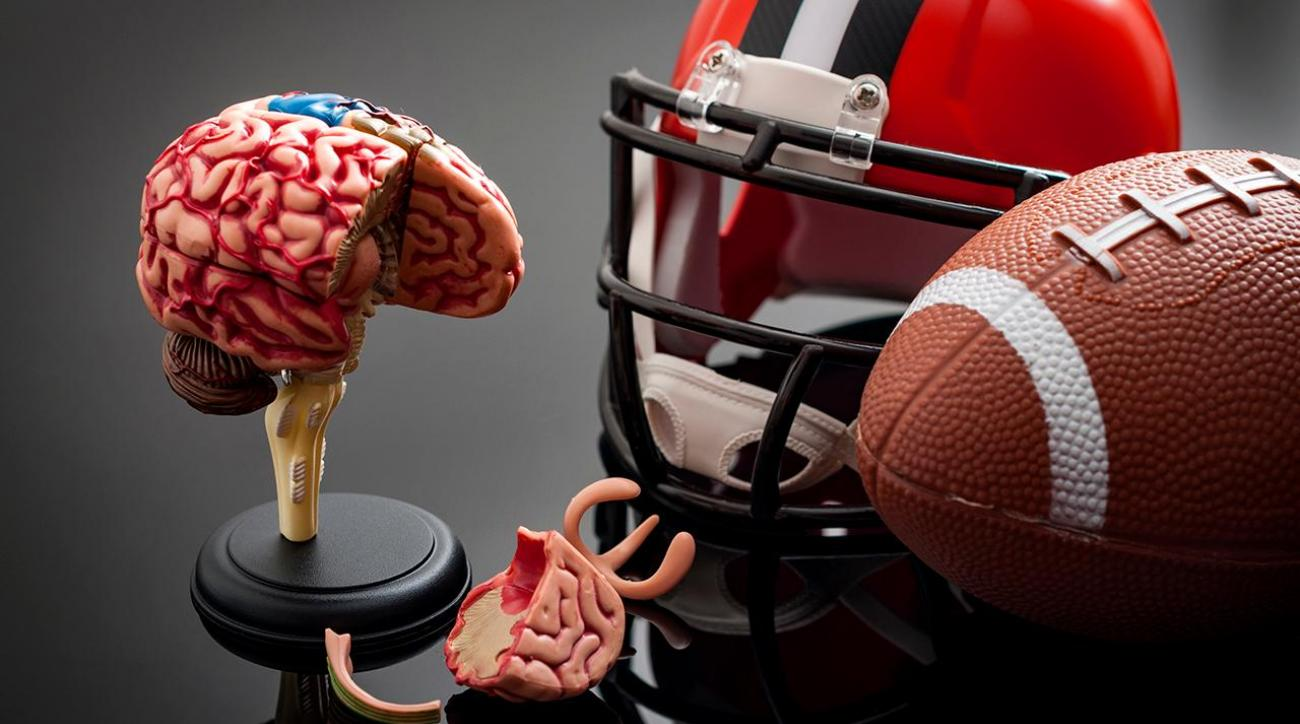 CTE found in 99% of studied brains from deceased NFL ...